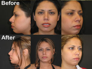 Chin Implant - Calwest Surgical Institute