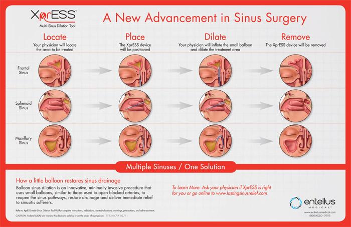 Sinus Treatment Best Balloon Sinuplasty Doctor Best